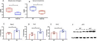 Photo of Brd2 haploinsufficiency extends lifespan and healthspan in C57B6/J mice